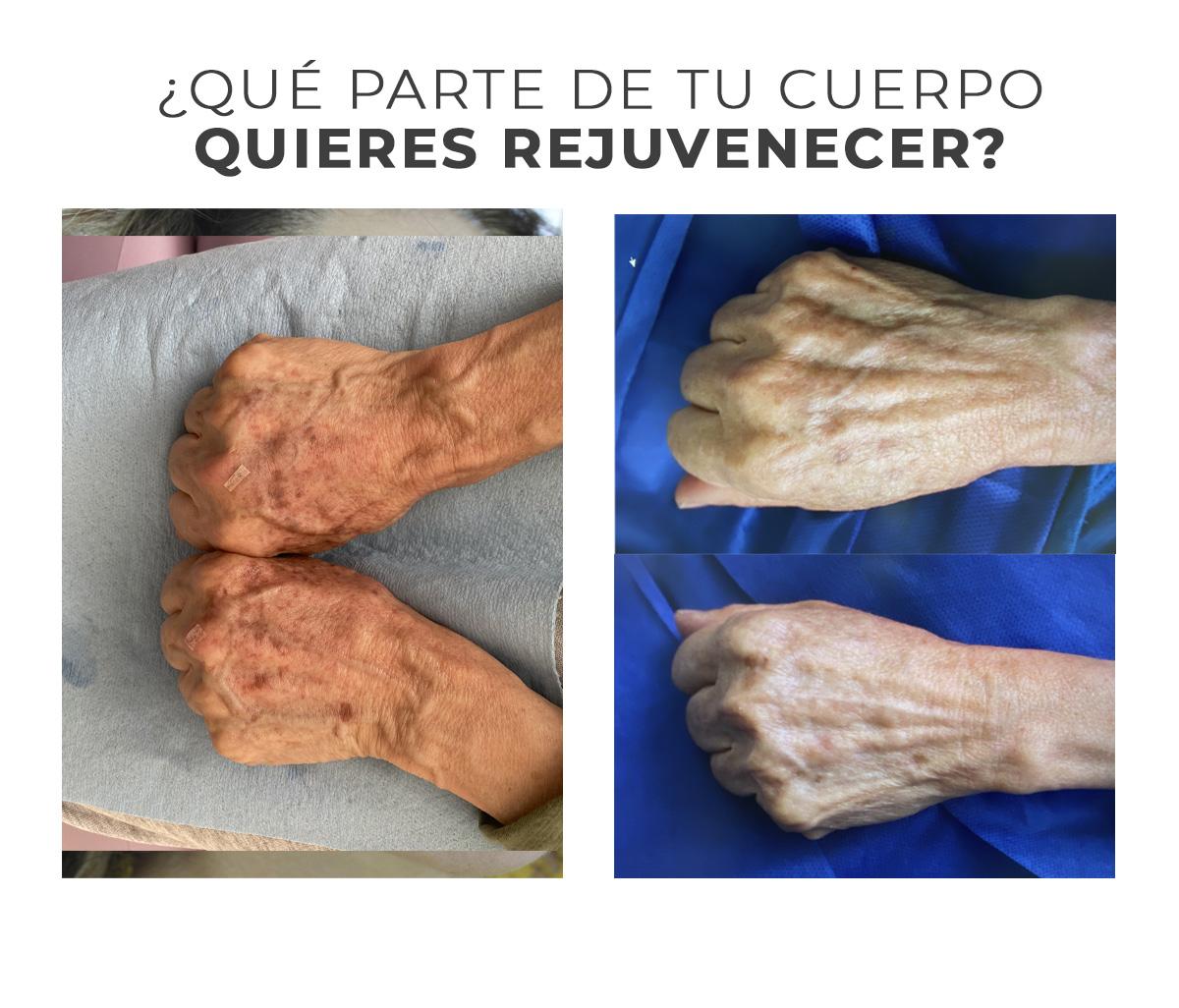 antes y despues manos