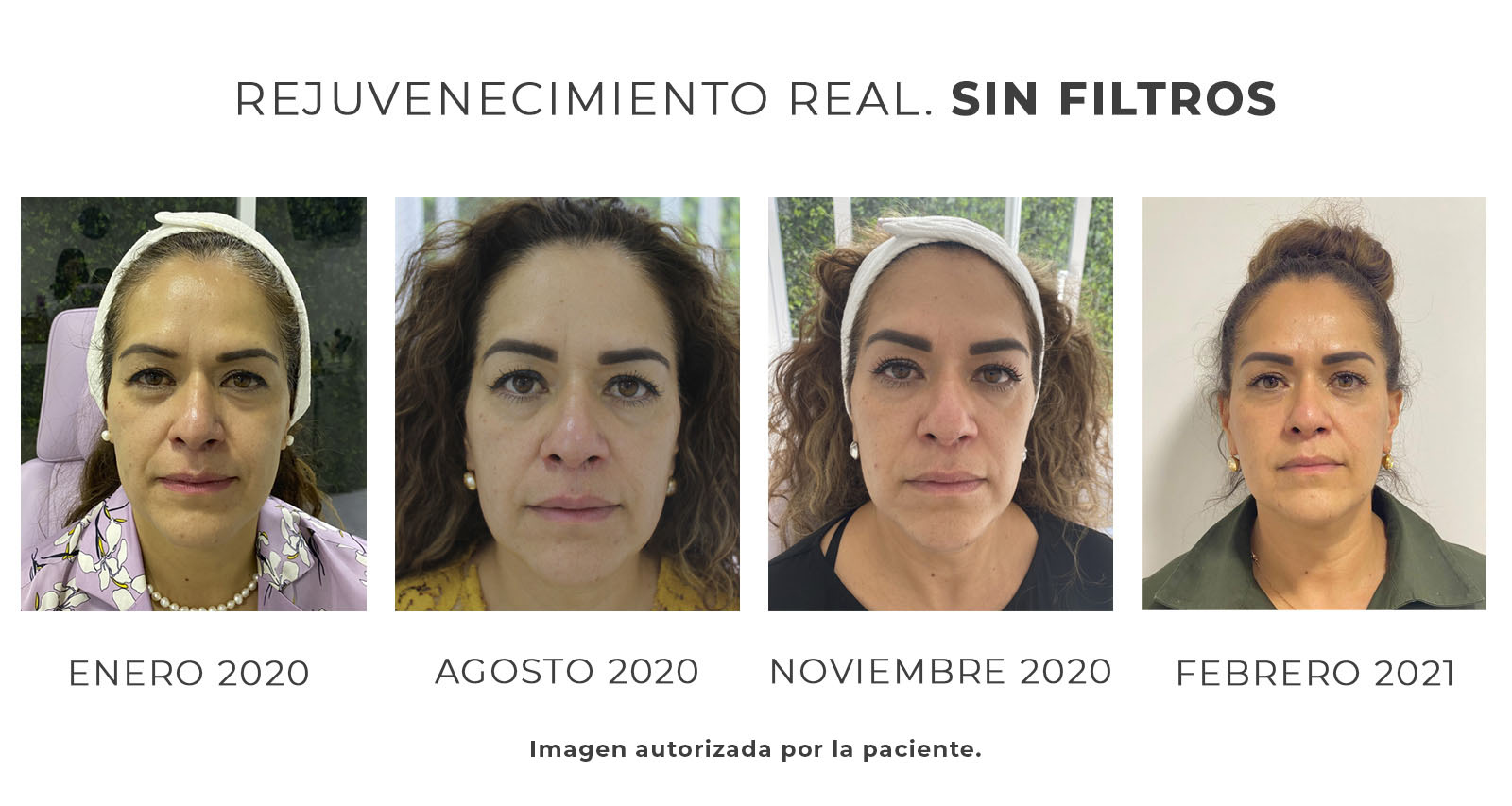rejuvenece-sin-filtros1